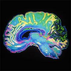 MRI Certification Program for Radiologic Technologist